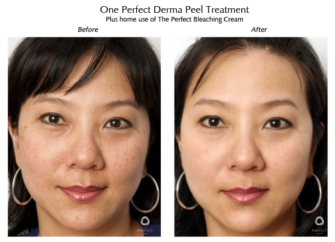 derma peel facial before after image
