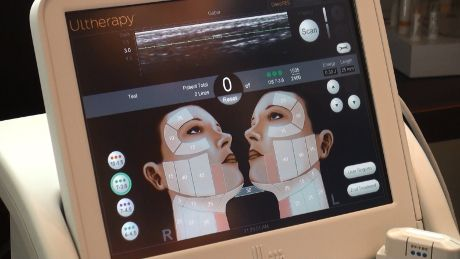 Ultherapy Device