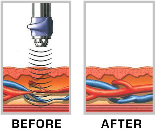Shock-wave therapy before after image