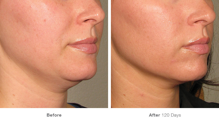 before after ultherapy results under chin