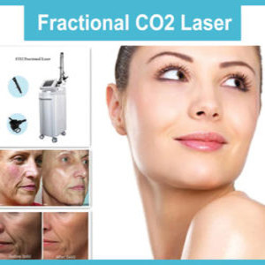 co2 laser facial in dearborn mi