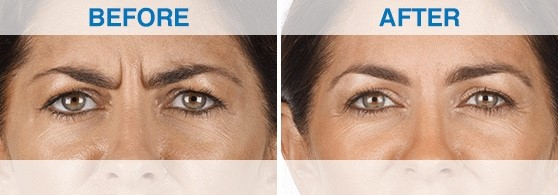 injectables frown-lines image