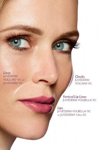 juvederm application image
