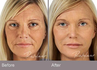 restylane before after image