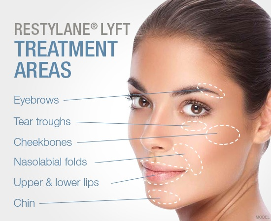 Restylane treatment areas image