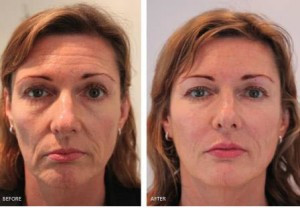 voluma before after image